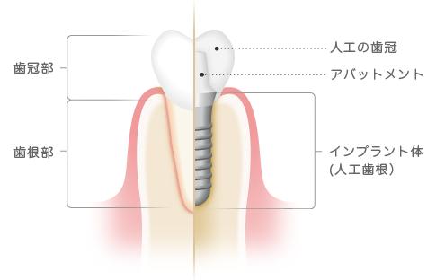 インプラント治療 インプラントの構造