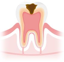 虫歯治療 C3