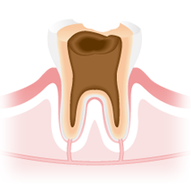虫歯治療 C4