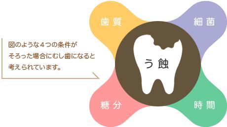 虫歯治療 4つの条件