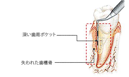 歯周病治療 エムドゲイン ゲル法前の歯周組織