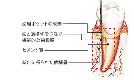 歯周病治療 エムドゲイン ゲル法で得られる歯周組織